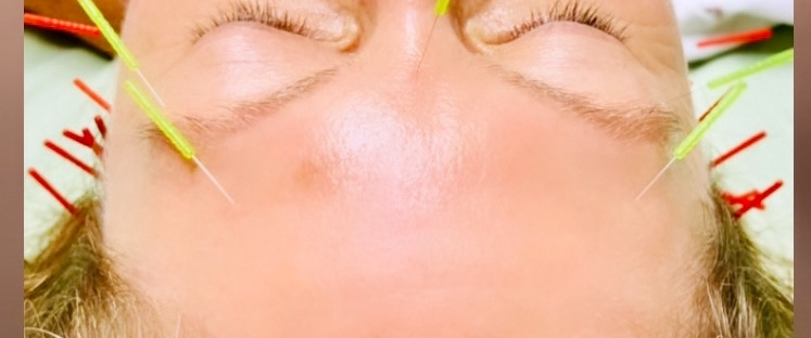 acupuncture, facial acupuncture, cosmetic facial acupuncture,